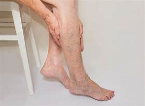 Our Blog Home remedies for varicose veins