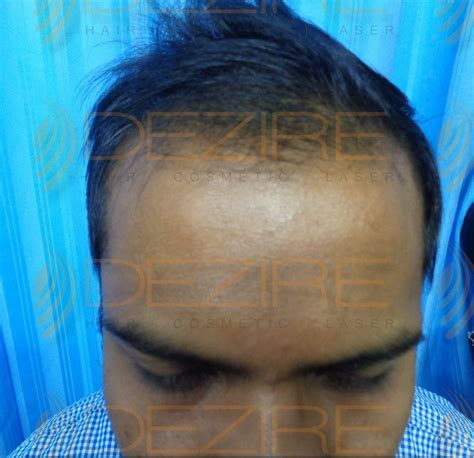 Hair Transplant in Dhole Patil Road Pune - Dezire Clinic
