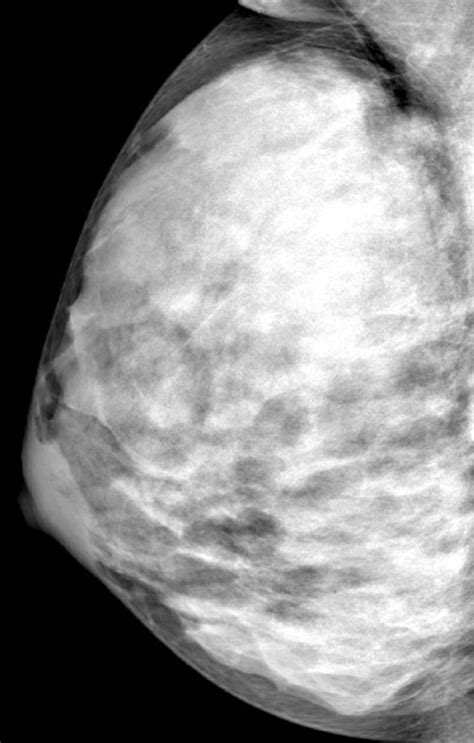 breast cancer risk related    breast density