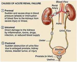 Renal Failure,Renal Failure Treatment India,Cost Renal ...
