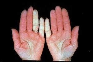 geen doorbloeding handen