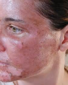 ... for home use: treats acne, scars, sun damage and fine lines.: beauty Acne