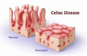 300 Facts You Didn U0026 39 T Know About Celiac Disease