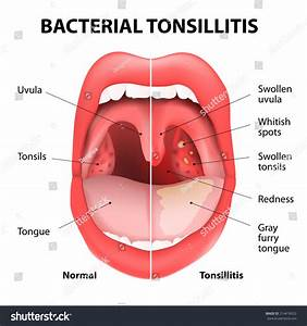 Related Keywords & Suggestions for tonsillitis