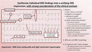 Intro To Ekg Interpretation - The 5 Cardinal Rules