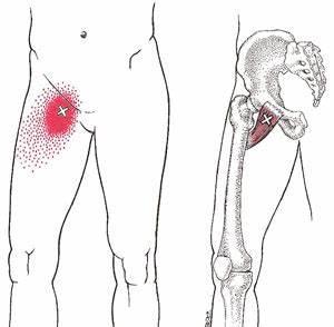 Pijncentrum Bravis, pijn, bovenbeen