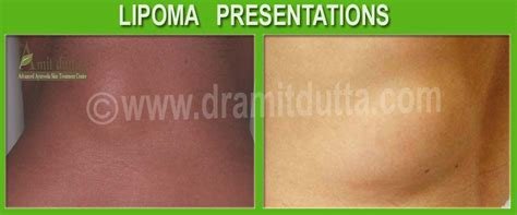 lipoma treatment in ayurveda