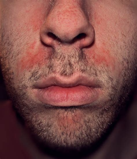 Seborrhoeic Dermatitis Wikipedia