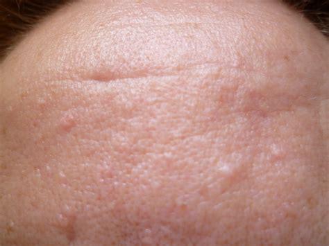 droopyyoupi borreliose de lyme lyme par le dr