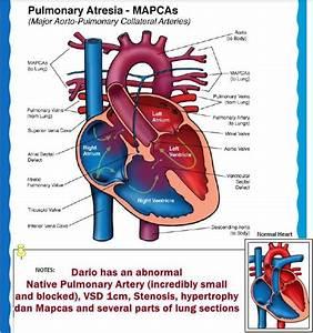23 best Major Aortopulmonary Collateral Artery (MAPCAs ...