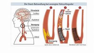 In Stand Setzen : schonende therapie f r die halsschlagader wissen ~ Lizthompson.info Haus und Dekorationen