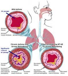 Asthmatic lungs (Image Credit: National institute of Allergy and ... Asthma