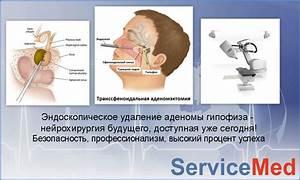Лечение аденома гипофиза в киеве