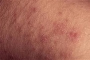 What Are the Most Common Causes of Morbilliform Rashes?