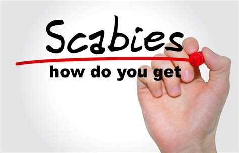 How Do You Get Scabies  Causes, Symptoms, Treatment, Pictures