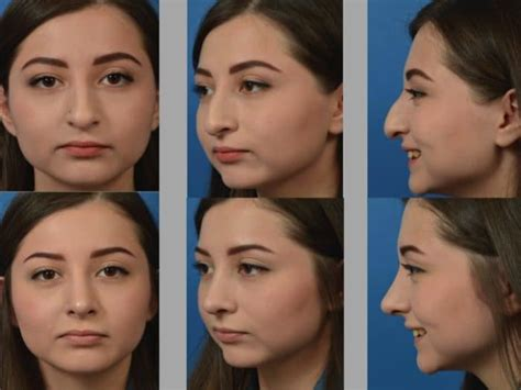 Rhinoplasty Newport Beach  Dr Aaron Kosins  (949) 721 0494. Health Science Masters Degree Programs. Colleges In Fort Worth Tx Seattle Eye Doctors. Tobacco Industry History Help Desk Procedures. What Is Financial Planning San Diego Seattle. Fibroid Tumors In Breast Who Invented Alcohol. Human Resources Studies Online. Lancaster County District Attorney. Amherst Family Practice Winchester Va