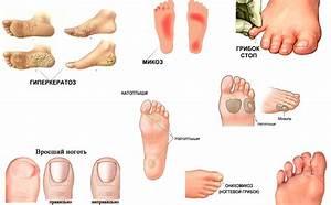Где лечить грибок на ногах