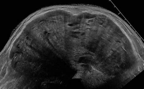 Ultrasound Cases