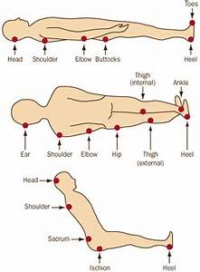 bed sore pressure sores stages treatment prevention at With bed pressure points