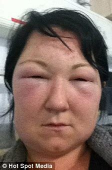 mother hospitalised   days  allergic reaction