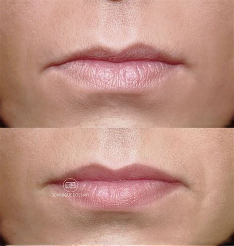 lips   micro color infusion treatment