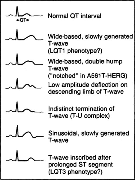 The Long QT Syndrome: Ion Channel Diseases of the Heart