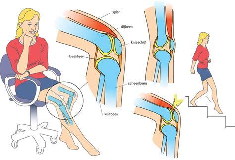 Zenuwpijn knie