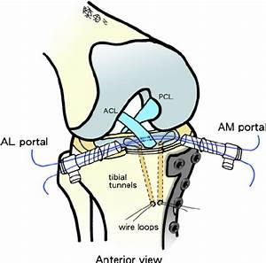 A Guide Suture Being Passed Through The Knee Joint Through