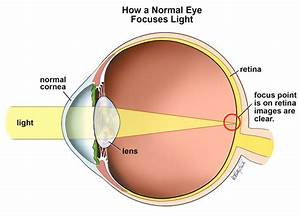 Eye Care And Vision  Refractive    Focussing  Errors  And How Spectacles And Contact Lenses Work