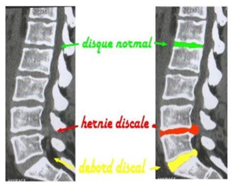 pincement discal l5 s1 arret travail soigner l hernie discale sans chirurgie st 233 phanie jan