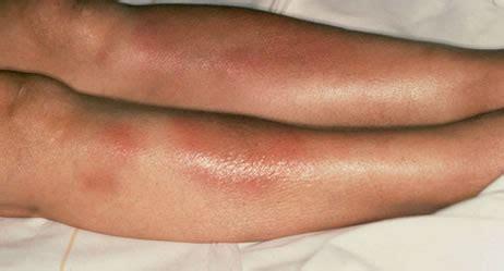 erythema nodosum knotenrose apotheken umschau