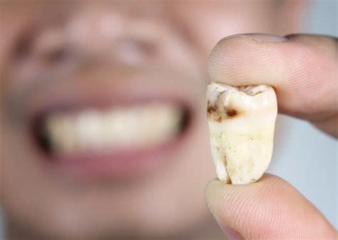 歯茎 が 痒い