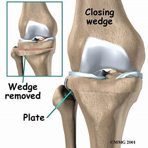 Osteotomy. Causes, symptoms, treatment Osteotomy