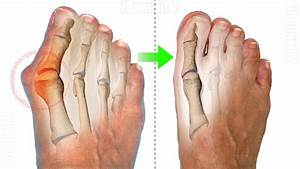 How To Cure Bunions Without Surgery  Home Remedies To