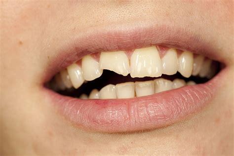 chocs sur les dents quoi faire avant d aller chez le dentiste