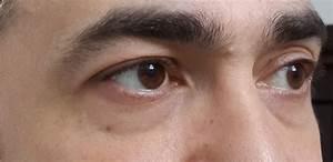 Гимнастика для глаз против морщин вокруг глаз