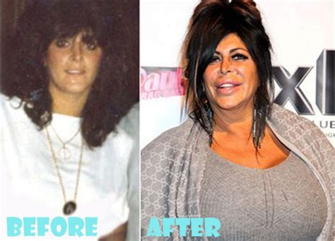 Big Ang Plastic Surgery Before And After Pictures Lovely