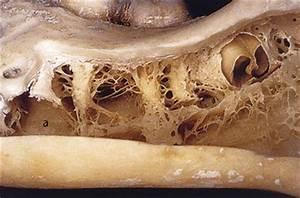 11 Bone Density | Pocket Dentistry