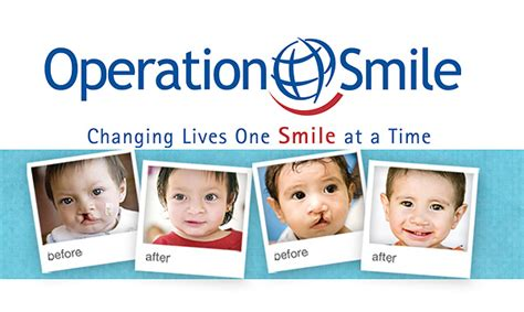 Cleft Lip Charity We Work Top Carpets And Floors Our Social Responsibility