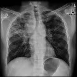 Diffuse interstitial lung disease Interstitial lung disease
