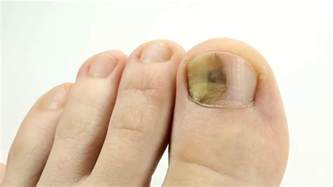 trauma of toenail toenails with fungal infection fungi