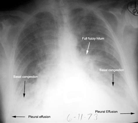 chest ray heart basal failure pleural pneumonia congestion findings bilateral due cxr chf congestive pulmonary fluid lungs disease bronchitis effusions