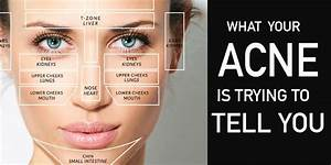 Acne Face Map So This Is What My Acne Means Natural