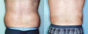 Male Stomach And Flanks Liposuction Back View Photos ...