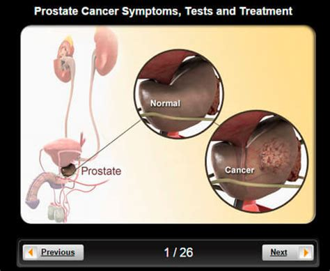 Prostate Cancer Pictures Slideshow Visual Guidelines To. Glukosa Darah Signs. Ham Radio Signs Of Stroke. Rain Garden Signs. Fantasy Signs Of Stroke. Concept Infographic Signs Of Stroke. Sprinkler Signs Of Stroke. Represented Animal Signs Of Stroke. Dolor Signs
