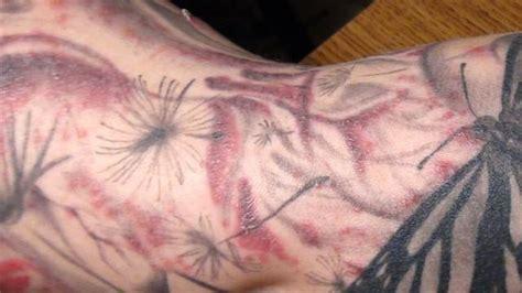 fda warns  tattoo inks  causing skin infections