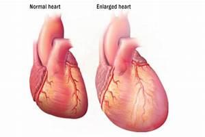 25+ best Enlarged Heart Symptoms ideas on Pinterest ...
