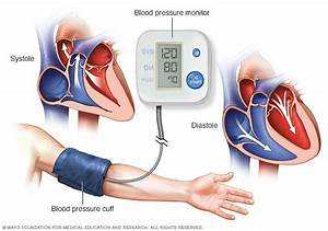 High Blood Pressure  Hypertension  Disease Reference Guide