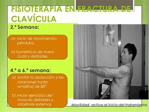 Fisioterapia En Fractura De Clavicula Pdf