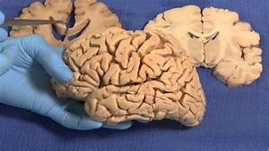 Limbic  Neuroanatomy Video Lab - Brain Dissections